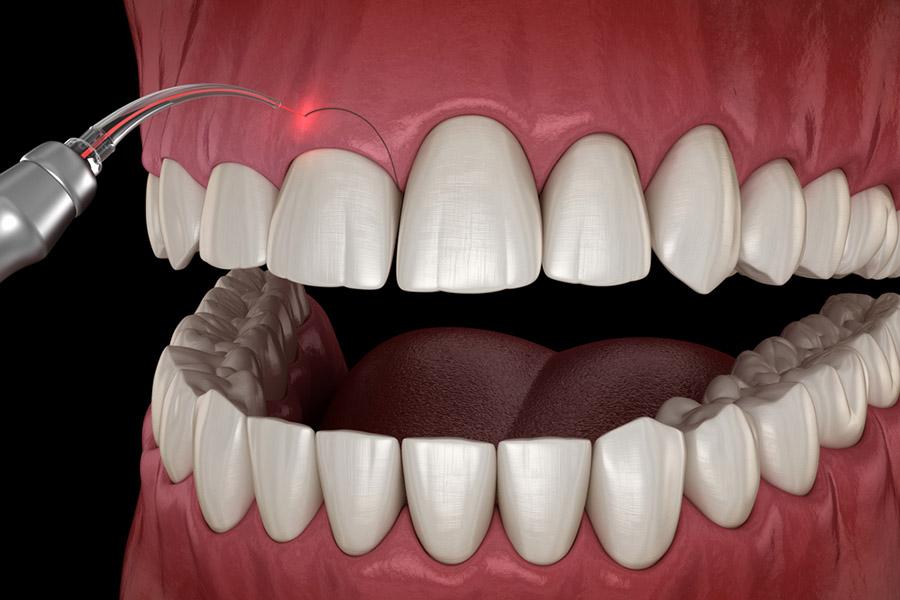 Lazeri Kim İcat Etti? Her ne kadar sağlık açısından risk içeren lazerler olmuş olsada, özellikle tıbbın belli alanlarında lazerle tedavi yöntemleri de vardır. Hatta günümüz teknolojileriyle, lazerle diş beyazlatma işlemleri dahi yapılmaktadır..